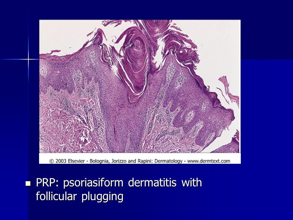 PRP: psoriasiform dermatitis with follicular plugging PRP: psoriasiform dermatitis with follicular plugging