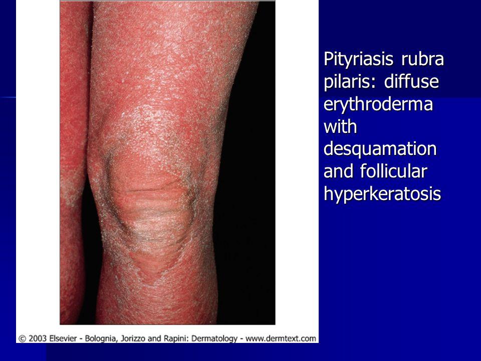 Pityriasis rubra pilaris: diffuse erythroderma with desquamation and follicular hyperkeratosis Pityriasis rubra pilaris: diffuse erythroderma with des