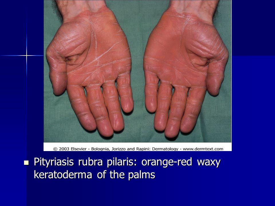 Pityriasis rubra pilaris: orange-red waxy keratoderma of the palms Pityriasis rubra pilaris: orange-red waxy keratoderma of the palms
