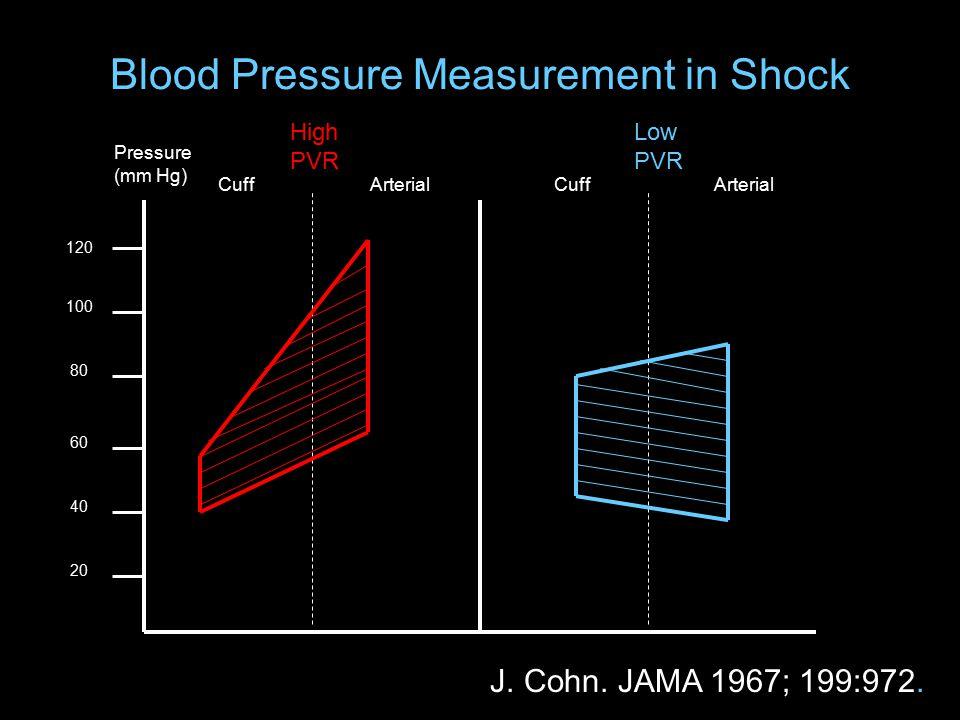 Blood Pressure Measurement in Shock 120 100 80 60 40 20 Pressure (mm Hg) High PVR Low PVR CuffArterialCuffArterial J.