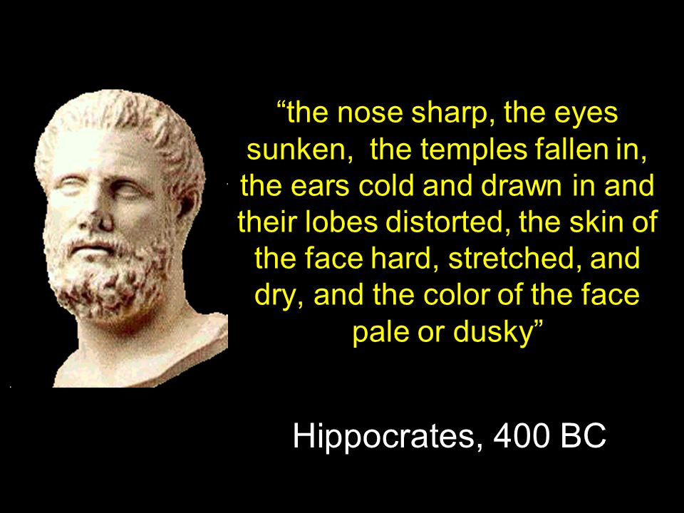 the nose sharp, the eyes sunken, the temples fallen in, the ears cold and drawn in and their lobes distorted, the skin of the face hard, stretched, and dry, and the color of the face pale or dusky Hippocrates, 400 BC