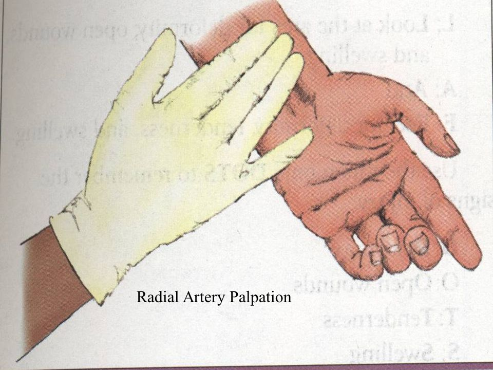 Step II: Perform Primary Assessment Look for Life- Threatening Conditions Form general impression of patient.