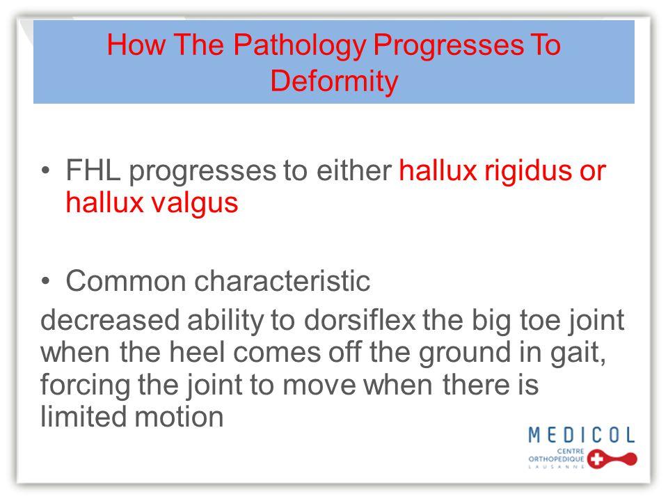 How The Pathology Progresses To Deformity FHL progresses to either hallux rigidus or hallux valgus Common characteristic decreased ability to dorsifle