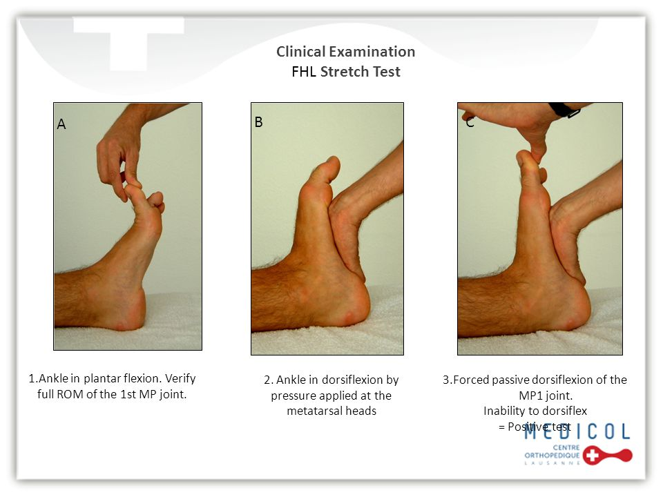 Clinical Examination FHL Stretch Test 1.Ankle in plantar flexion. Verify full ROM of the 1st MP joint. 3.Forced passive dorsiflexion of the MP1 joint.