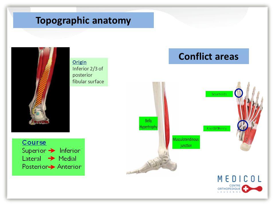Origin Inferior 2/3 of posterior fibular surface Topographic anatomy Conflict areas