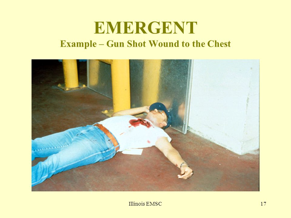 Illinois EMSC17 EMERGENT Example – Gun Shot Wound to the Chest