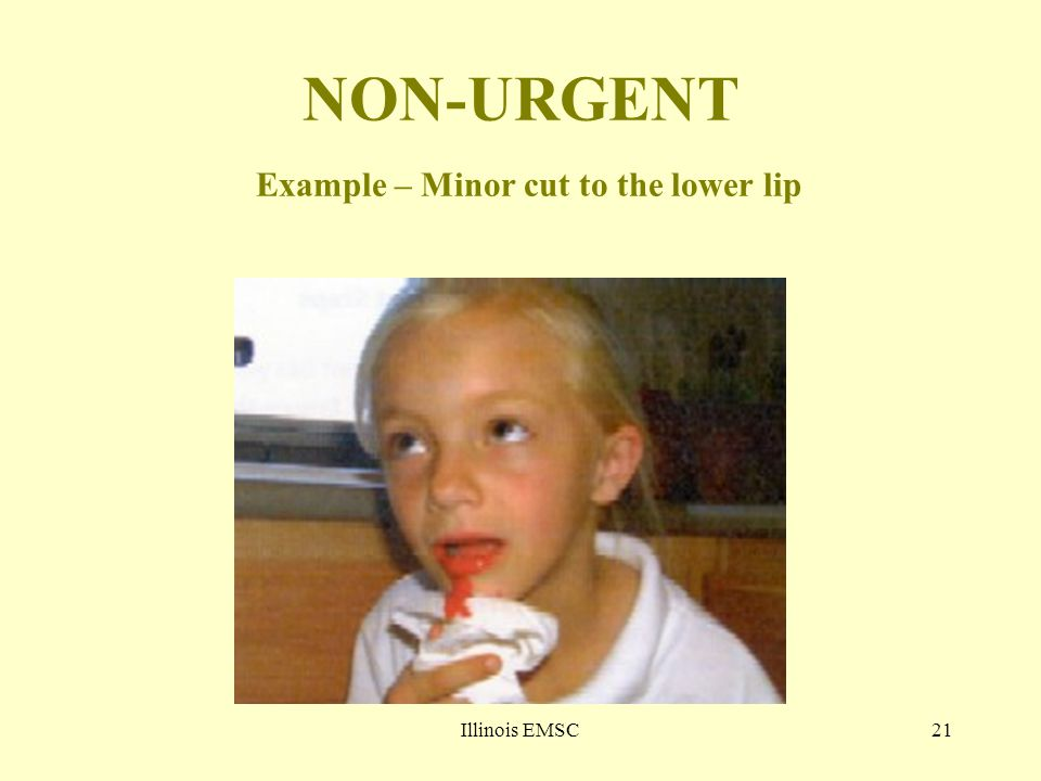 Illinois EMSC21 NON-URGENT Example – Minor cut to the lower lip