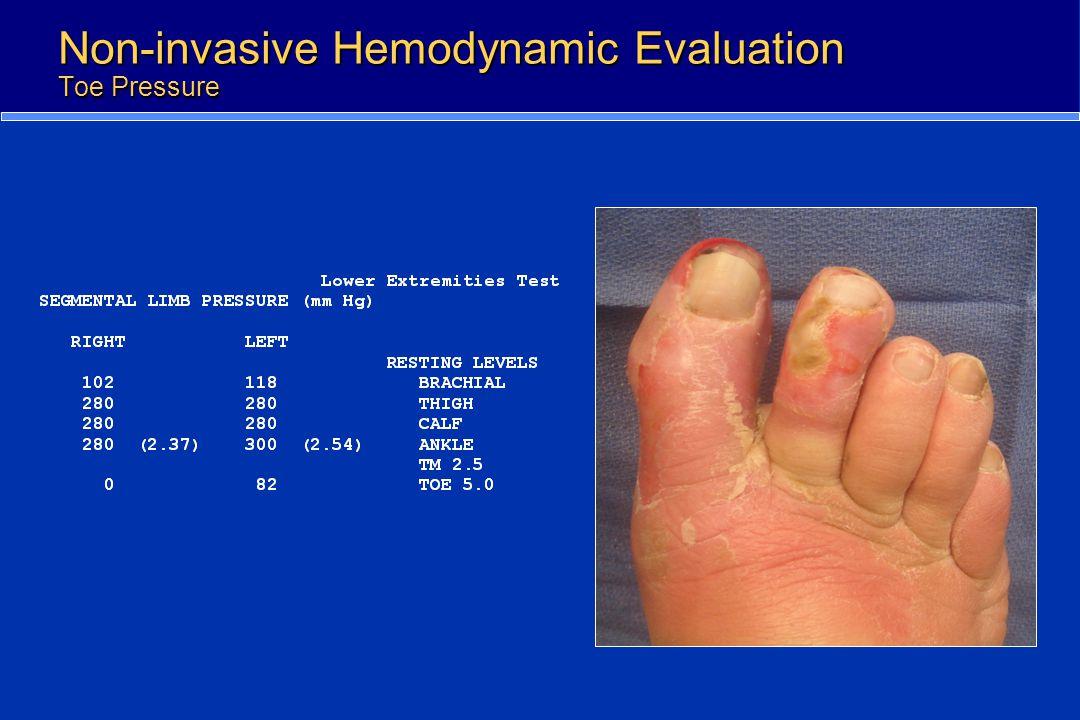 Non-invasive Hemodynamic Evaluation Toe Pressure