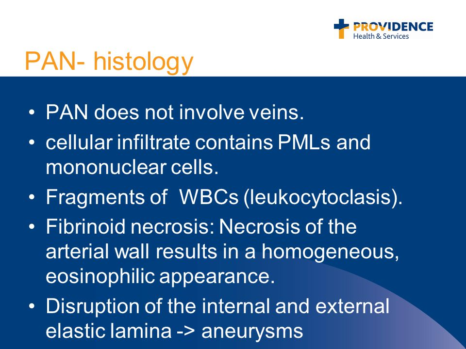 PAN- histology PAN does not involve veins. cellular infiltrate contains PMLs and mononuclear cells.