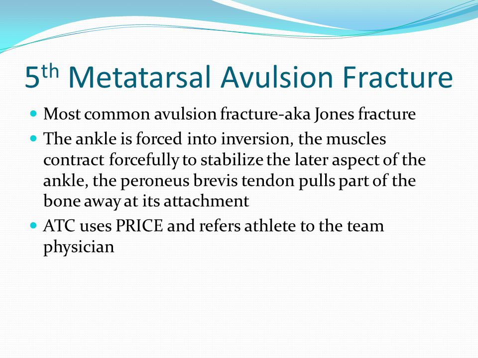 5 th Metatarsal Avulsion Fracture Most common avulsion fracture-aka Jones fracture The ankle is forced into inversion, the muscles contract forcefully to stabilize the later aspect of the ankle, the peroneus brevis tendon pulls part of the bone away at its attachment ATC uses PRICE and refers athlete to the team physician