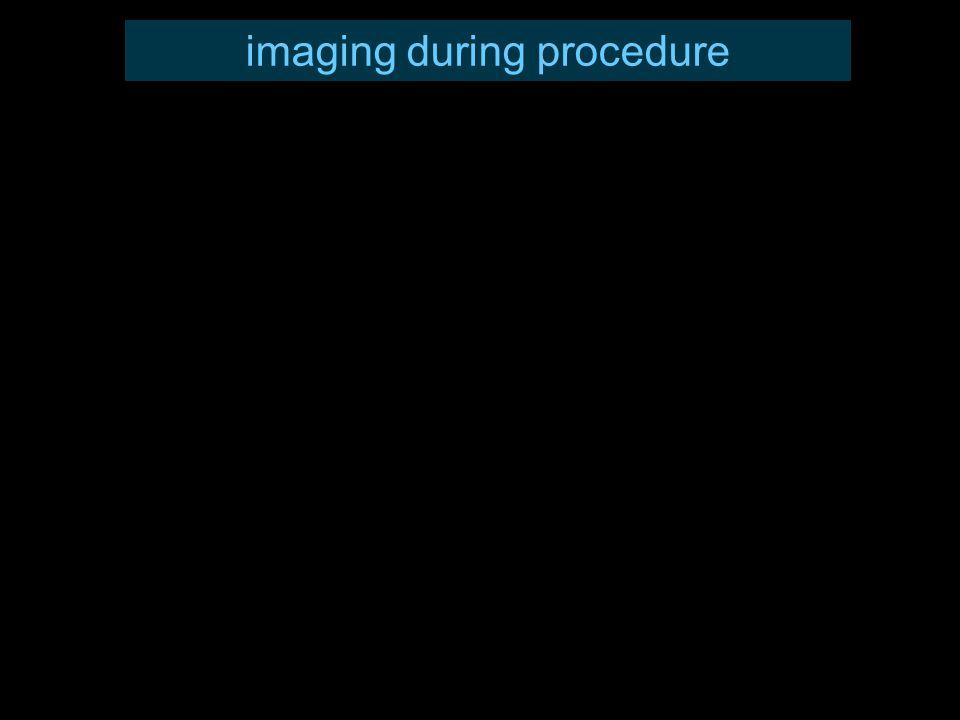 imaging during procedure
