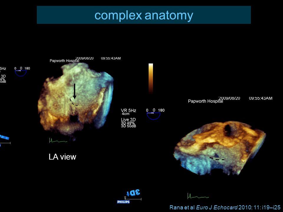 complex anatomy LA view Rana et al Euro J Echocard 2010; 11: i19–i25