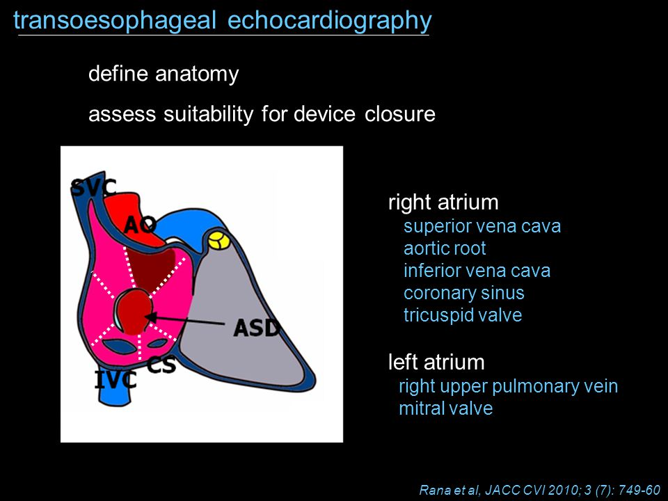 SVC IVC CS AO ASD transoesophageal echocardiography define anatomy assess suitability for device closure right atrium superior vena cava aortic root i