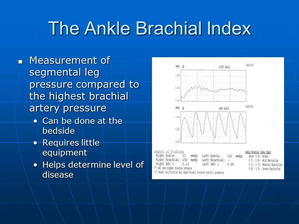 The Ankle Brachial Index Measurement of segmental leg pressure compared to the highest brachial artery pressure Measurement of segmental leg pressure