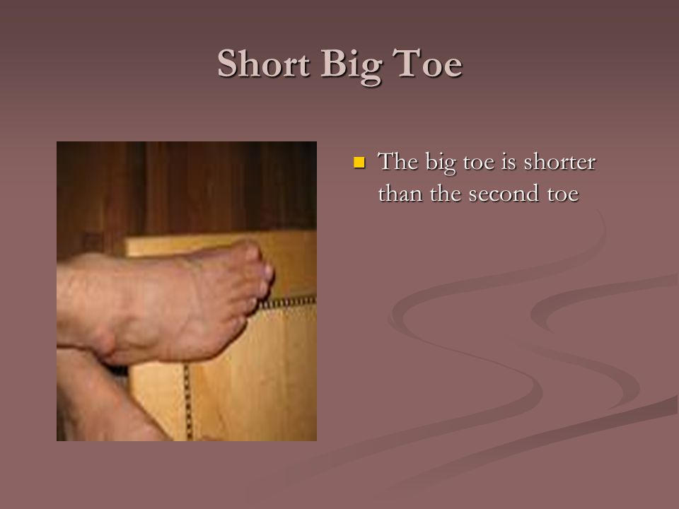 Short Big Toe The big toe is shorter than the second toe