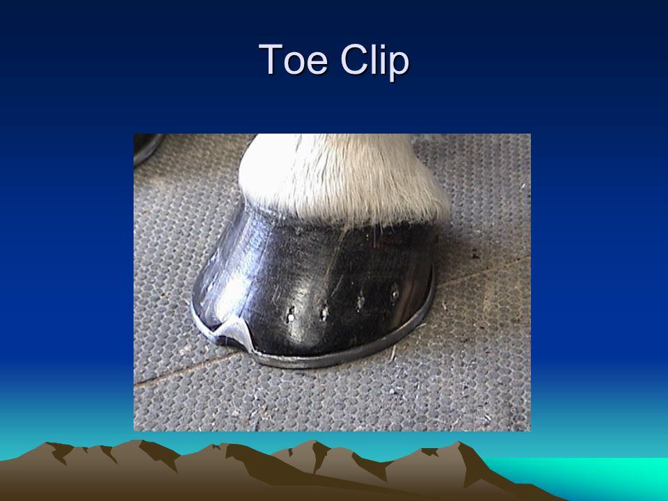 Toe Clip