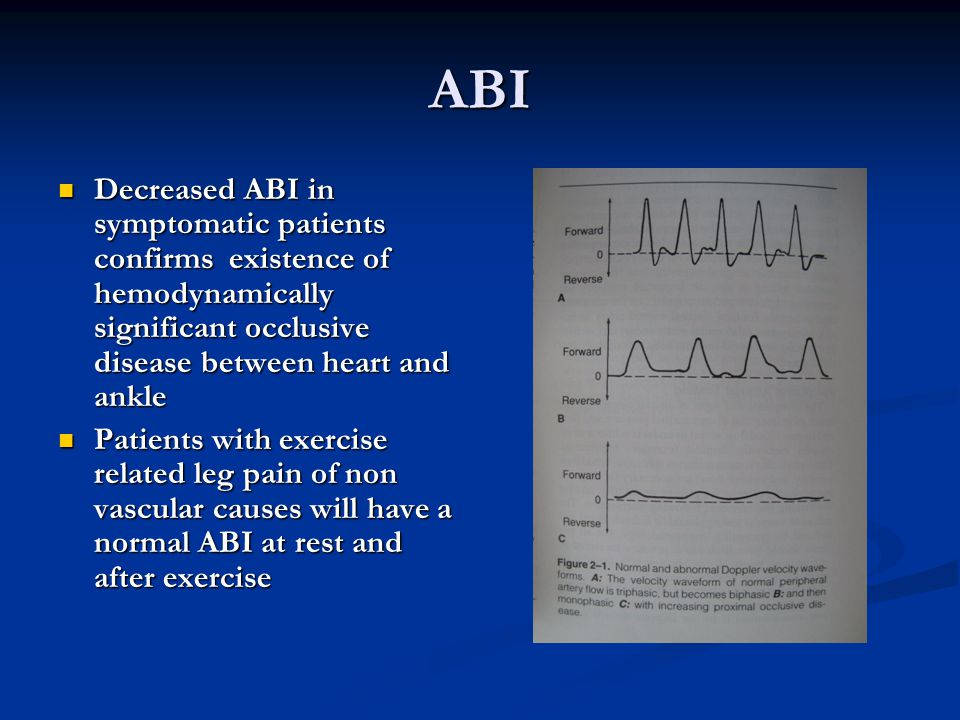 ABI Decreased ABI in symptomatic patients confirms existence of hemodynamically significant occlusive disease between heart and ankle Decreased ABI in symptomatic patients confirms existence of hemodynamically significant occlusive disease between heart and ankle Patients with exercise related leg pain of non vascular causes will have a normal ABI at rest and after exercise Patients with exercise related leg pain of non vascular causes will have a normal ABI at rest and after exercise