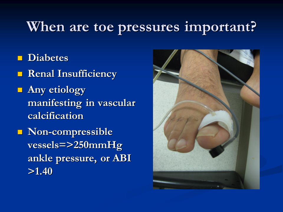 When are toe pressures important.