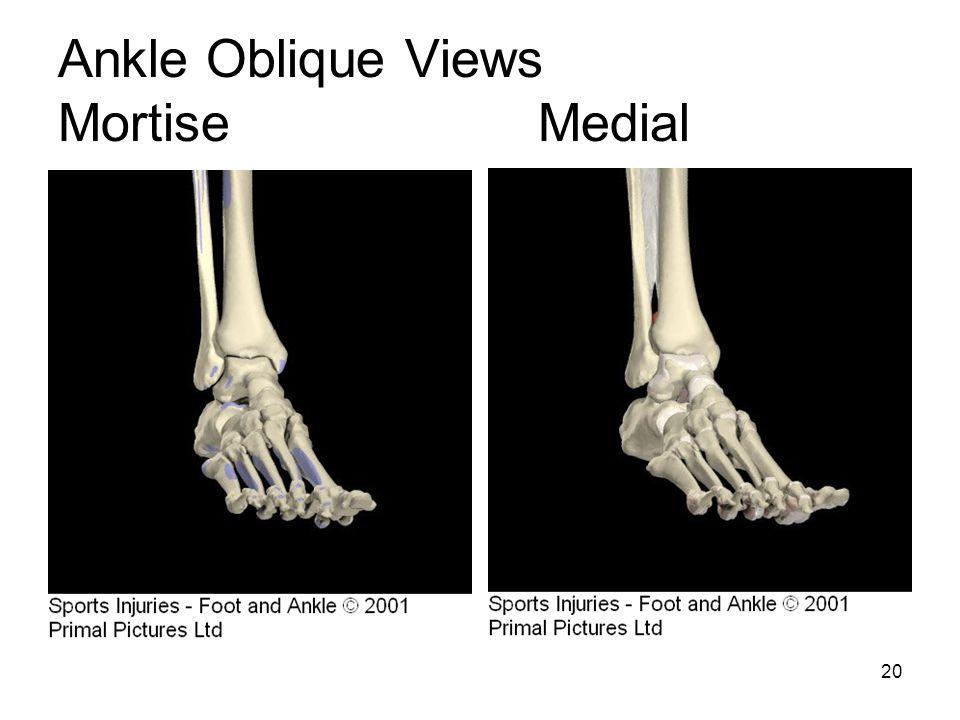 20 Ankle Oblique Views MortiseMedial