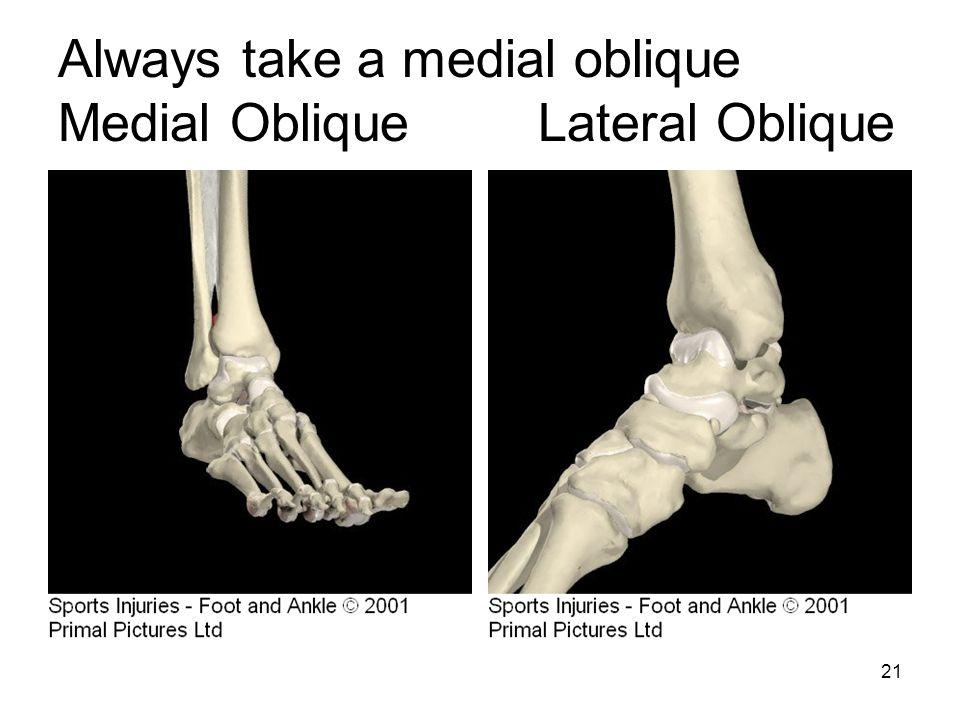 21 Always take a medial oblique Medial ObliqueLateral Oblique