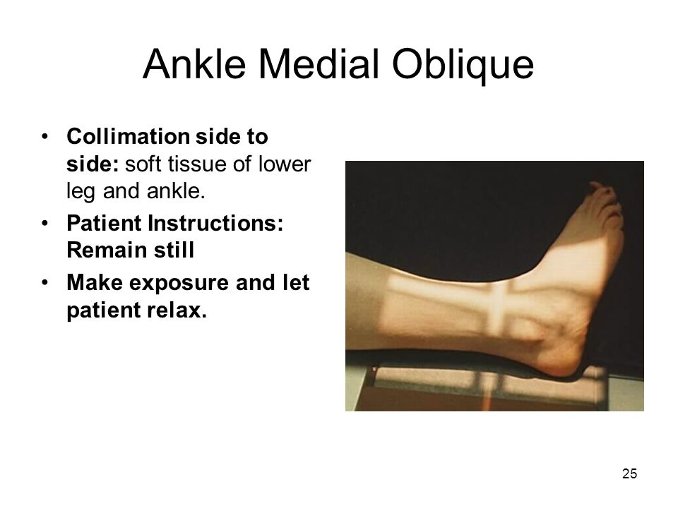 25 Ankle Medial Oblique Collimation side to side: soft tissue of lower leg and ankle. Patient Instructions: Remain still Make exposure and let patient