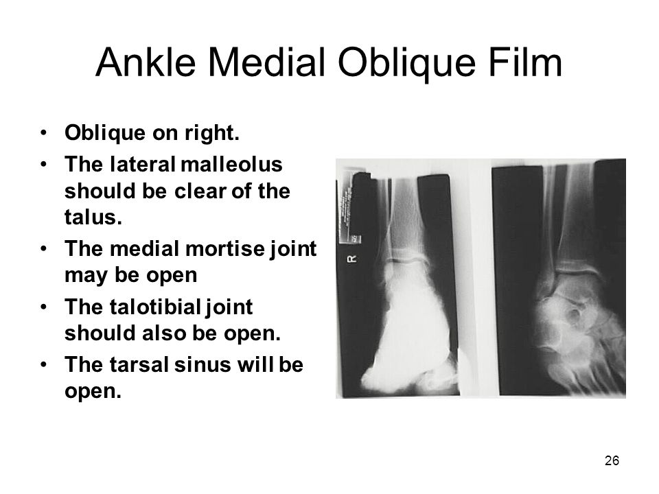 26 Ankle Medial Oblique Film Oblique on right. The lateral malleolus should be clear of the talus. The medial mortise joint may be open The talotibial