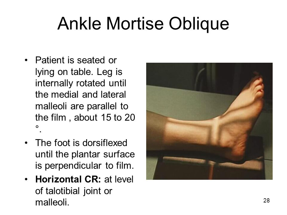 28 Ankle Mortise Oblique Patient is seated or lying on table. Leg is internally rotated until the medial and lateral malleoli are parallel to the film