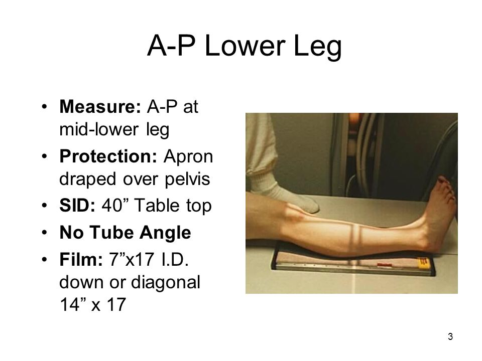 """3 A-P Lower Leg Measure: A-P at mid-lower leg Protection: Apron draped over pelvis SID: 40"""" Table top No Tube Angle Film: 7""""x17 I.D. down or diagonal"""