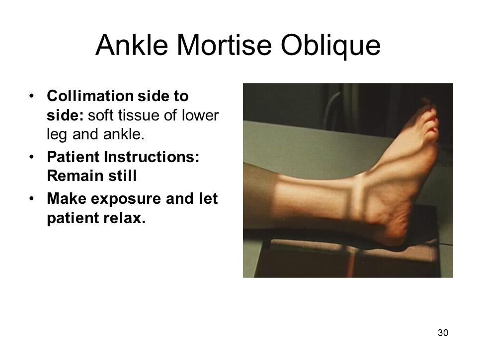 30 Ankle Mortise Oblique Collimation side to side: soft tissue of lower leg and ankle. Patient Instructions: Remain still Make exposure and let patien