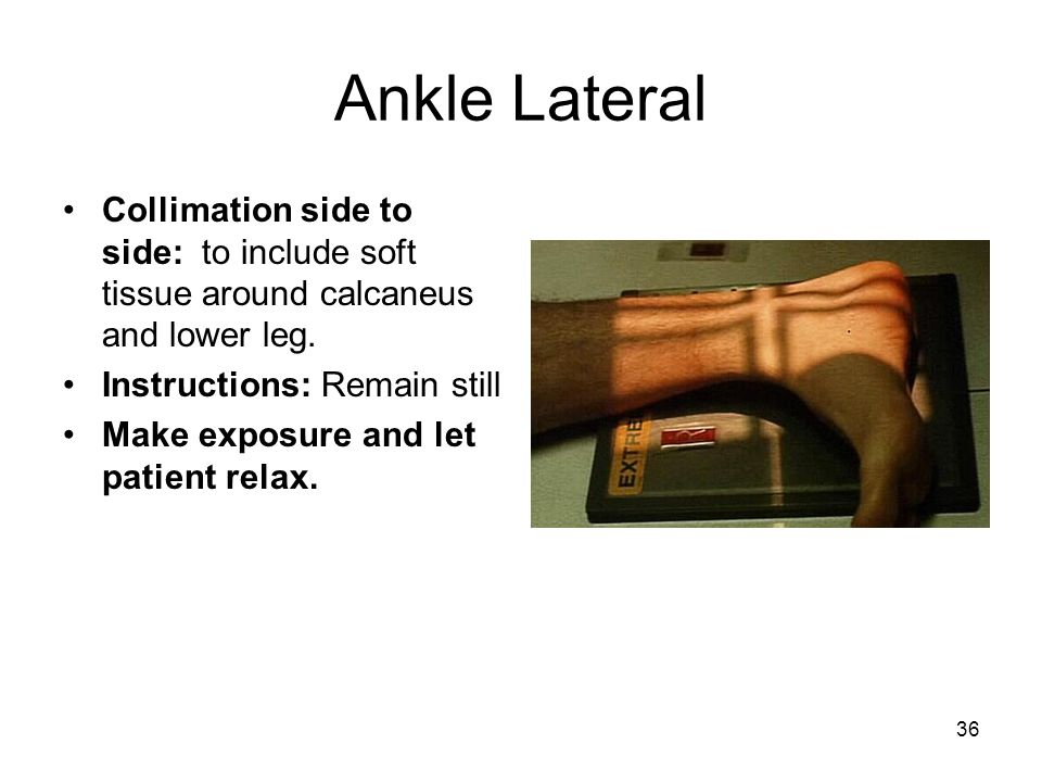 36 Ankle Lateral Collimation side to side: to include soft tissue around calcaneus and lower leg. Instructions: Remain still Make exposure and let pat