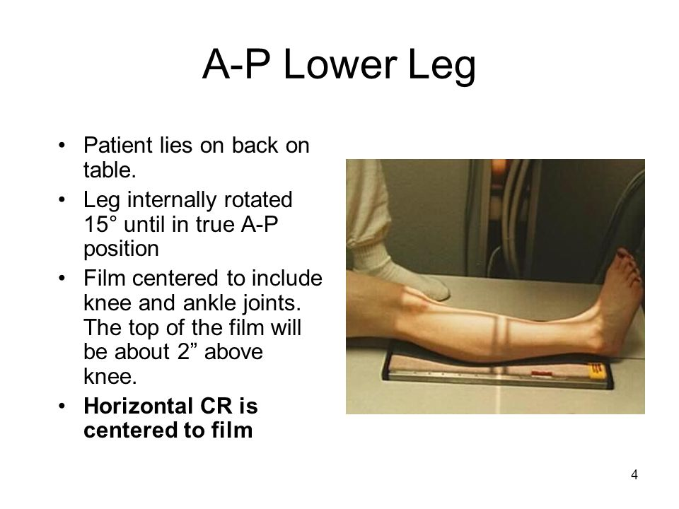 4 A-P Lower Leg Patient lies on back on table. Leg internally rotated 15° until in true A-P position Film centered to include knee and ankle joints. T