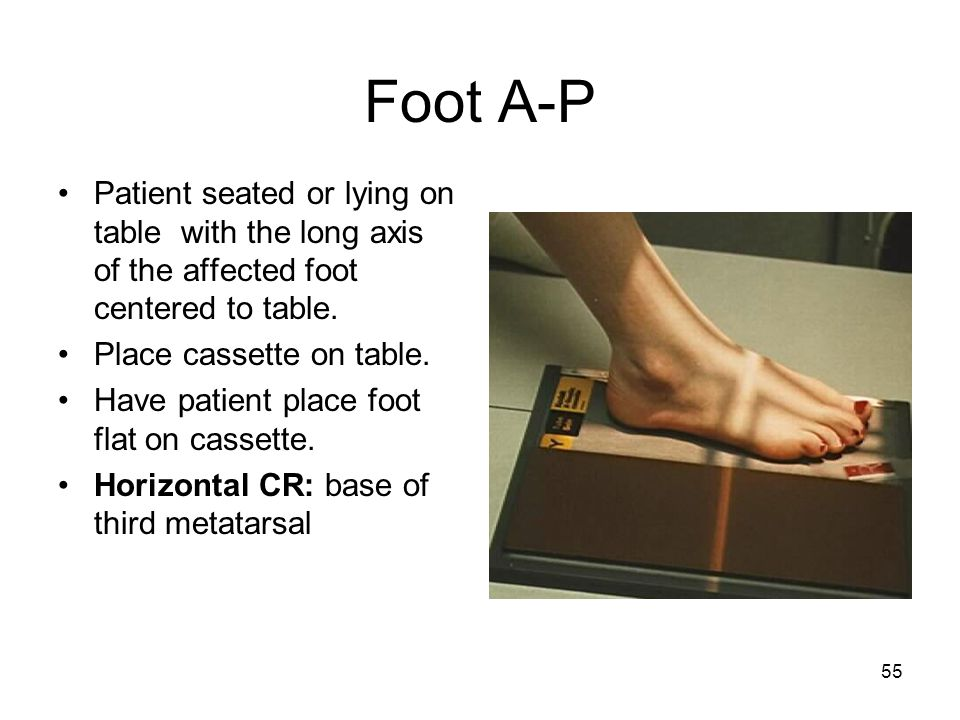 55 Foot A-P Patient seated or lying on table with the long axis of the affected foot centered to table. Place cassette on table. Have patient place fo