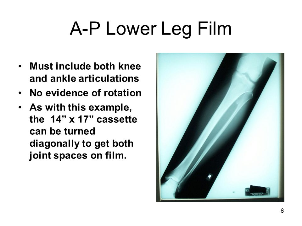 """6 A-P Lower Leg Film Must include both knee and ankle articulations No evidence of rotation As with this example, the 14"""" x 17"""" cassette can be turned"""