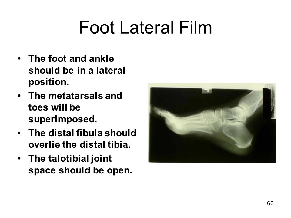 66 Foot Lateral Film The foot and ankle should be in a lateral position. The metatarsals and toes will be superimposed. The distal fibula should overl