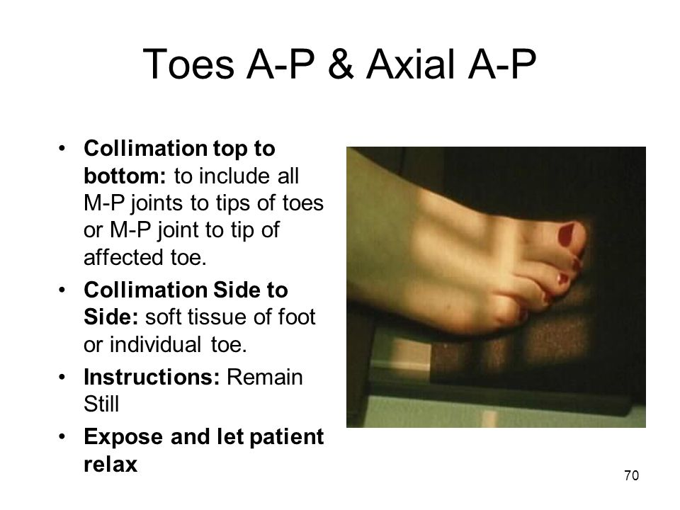 70 Toes A-P & Axial A-P Collimation top to bottom: to include all M-P joints to tips of toes or M-P joint to tip of affected toe. Collimation Side to