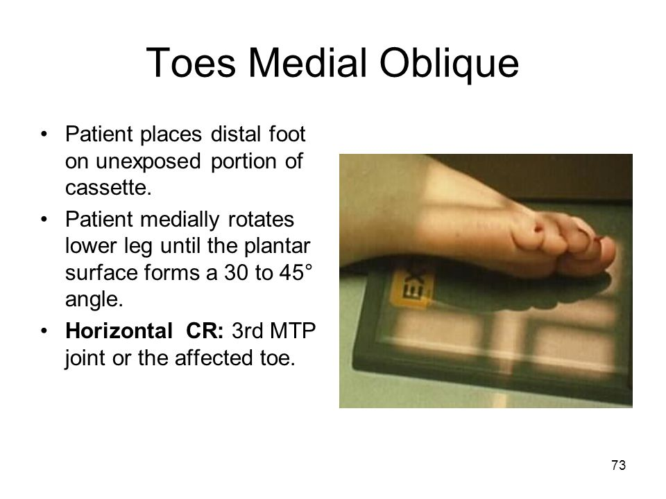 73 Toes Medial Oblique Patient places distal foot on unexposed portion of cassette. Patient medially rotates lower leg until the plantar surface forms