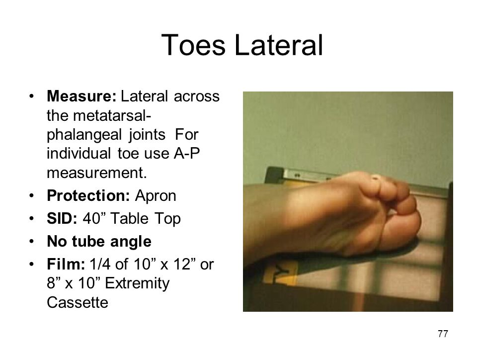 """77 Toes Lateral Measure: Lateral across the metatarsal- phalangeal joints For individual toe use A-P measurement. Protection: Apron SID: 40"""" Table Top"""