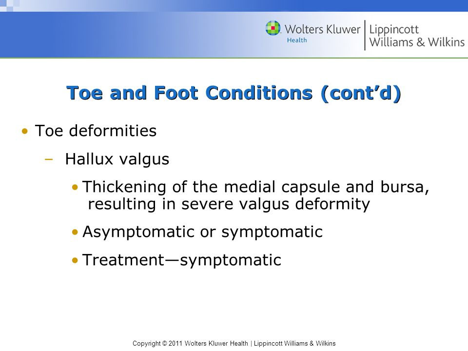 Copyright © 2011 Wolters Kluwer Health   Lippincott Williams & Wilkins Toe and Foot Conditions (cont'd) Toe deformities –Hallux valgus Thickening of the medial capsule and bursa, resulting in severe valgus deformity Asymptomatic or symptomatic Treatment—symptomatic