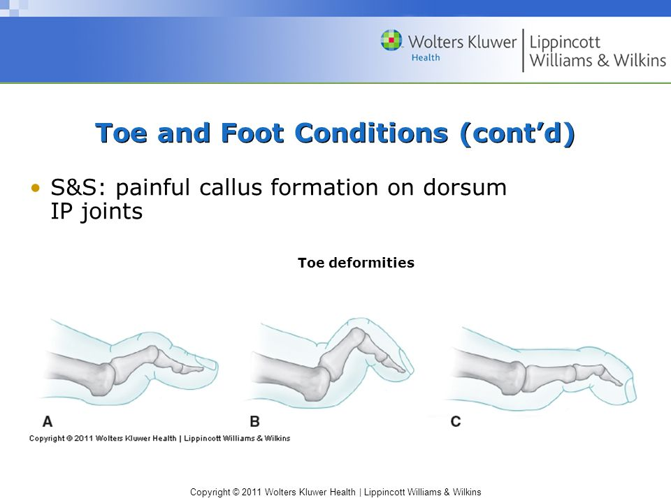 Copyright © 2011 Wolters Kluwer Health   Lippincott Williams & Wilkins Toe and Foot Conditions (cont'd) S&S: painful callus formation on dorsum IP joints Toe deformities