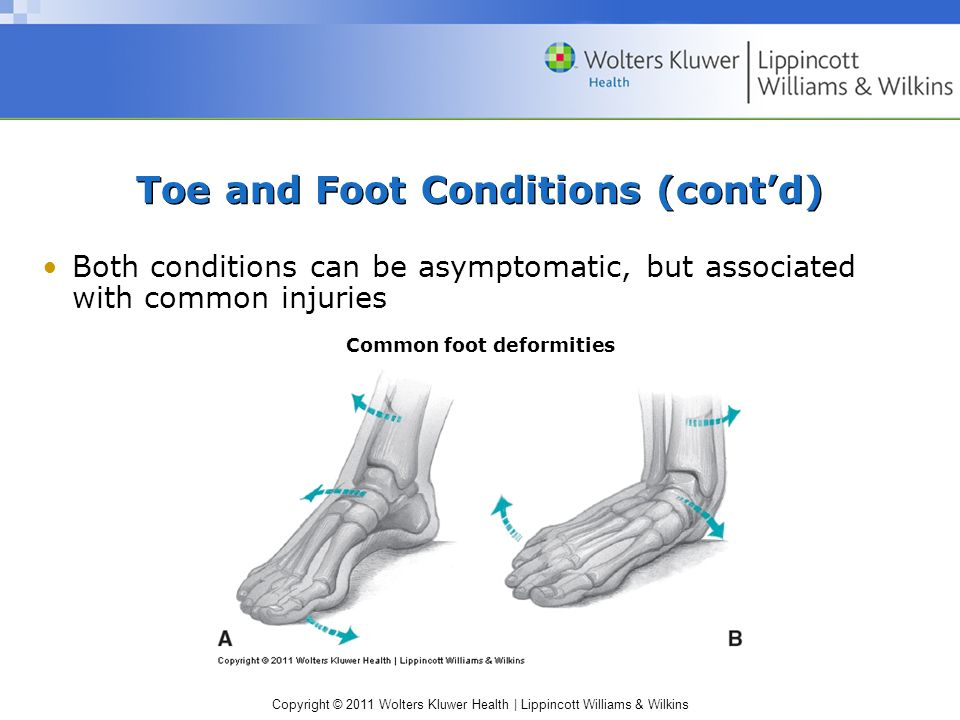 Copyright © 2011 Wolters Kluwer Health   Lippincott Williams & Wilkins Toe and Foot Conditions (cont'd) Both conditions can be asymptomatic, but associated with common injuries Common foot deformities