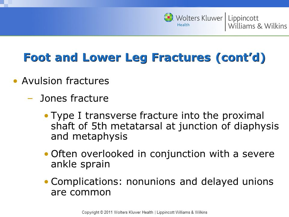 Copyright © 2011 Wolters Kluwer Health   Lippincott Williams & Wilkins Foot and Lower Leg Fractures (cont'd) Avulsion fractures –Jones fracture Type I transverse fracture into the proximal shaft of 5th metatarsal at junction of diaphysis and metaphysis Often overlooked in conjunction with a severe ankle sprain Complications: nonunions and delayed unions are common