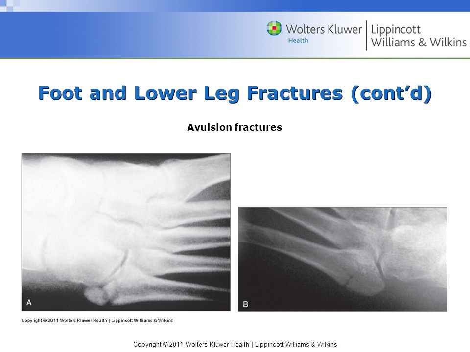 Copyright © 2011 Wolters Kluwer Health   Lippincott Williams & Wilkins Foot and Lower Leg Fractures (cont'd) Avulsion fractures