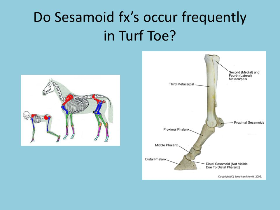 Do Sesamoid fx's occur frequently in Turf Toe