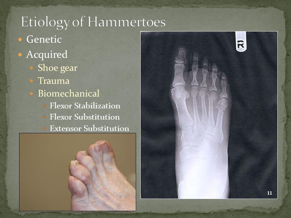 Genetic Acquired Shoe gear Trauma Biomechanical Flexor Stabilization Flexor Substitution Extensor Substitution 11
