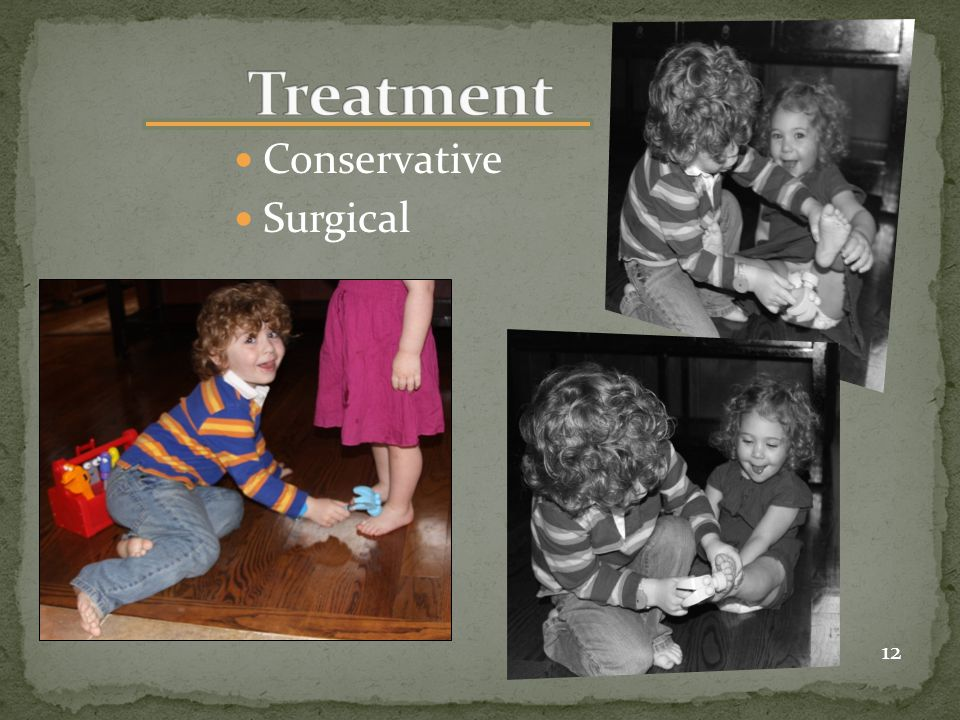 Conservative Surgical 12