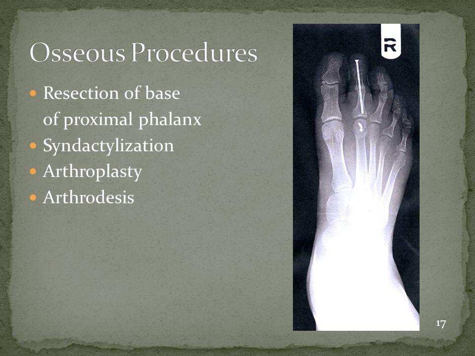 Resection of base of proximal phalanx Syndactylization Arthroplasty Arthrodesis 17