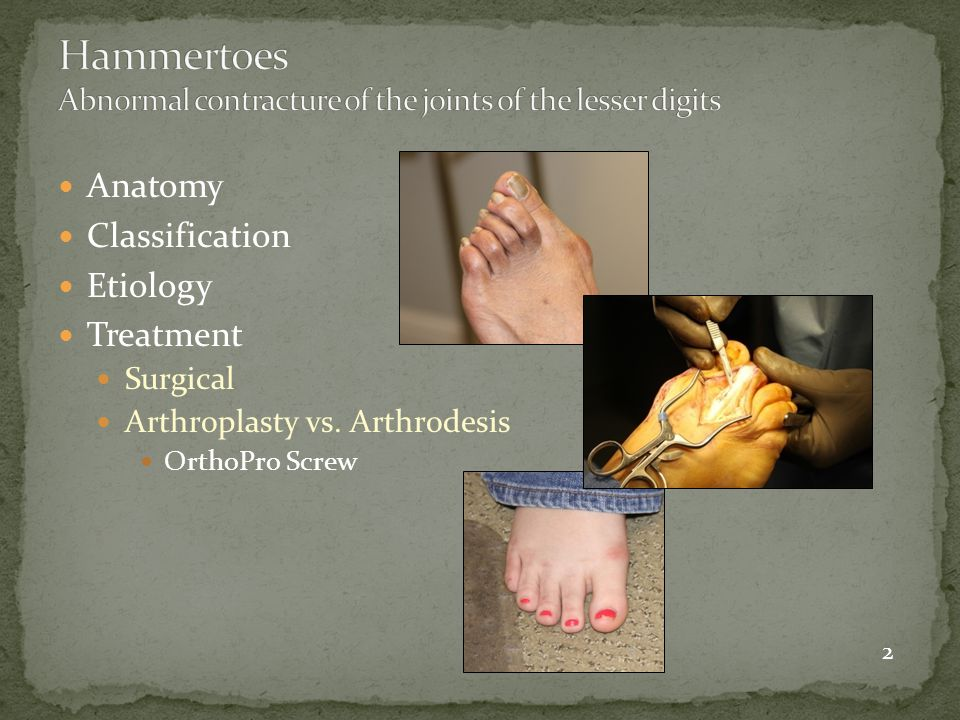 Arthroplasty Most common procedure performed for hammertoe correction Technically easy procedure Some motion is retained Shortening of digit is inherent to procedure May be unstable Increased chance of recurrence of hammertoe deformity Fixation K-wire Implant Indications Flexible to semi – rigid deformity Not as common Technically more difficult procedure No motion, toe is rigid Maintains relative length of digit Stable Minimal chance of recurrence Longevity of correction Fixation Screw Threaded or Smooth K-wire Implant Indications: Loss of Intrinsic muscle stability  Diabetes  Neuromuscular conditions Athrodesis 23
