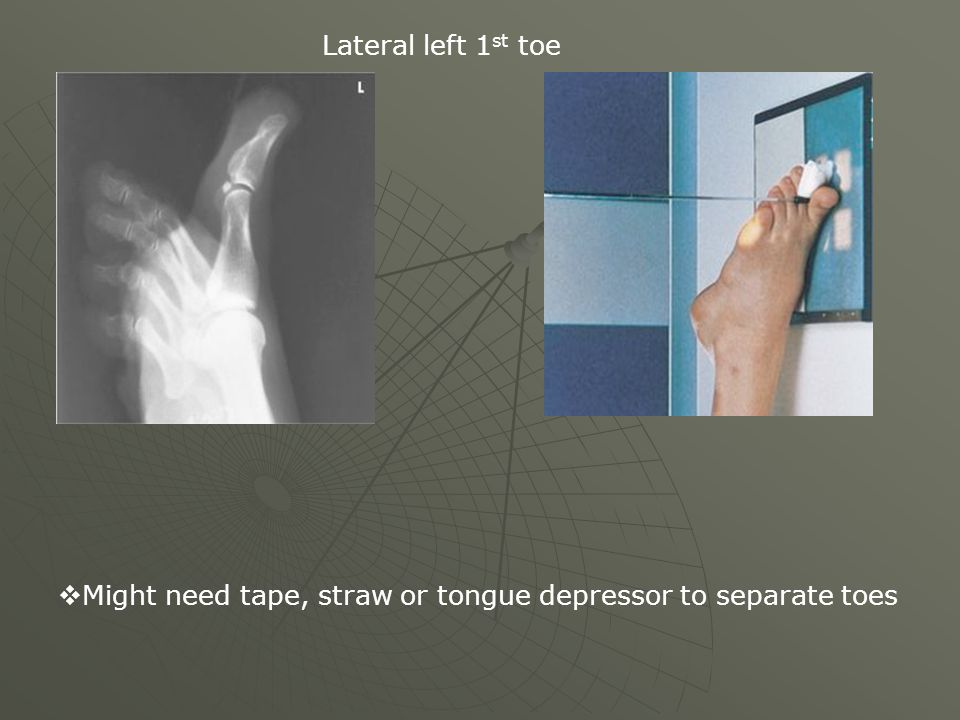 Lateral left 1 st toe  Might need tape, straw or tongue depressor to separate toes
