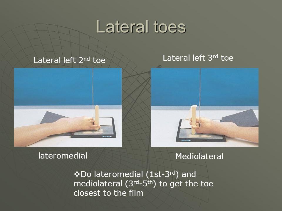 Lateral toes  Do lateromedial (1st-3 rd ) and mediolateral (3 rd -5 th ) to get the toe closest to the film lateromedial Mediolateral Lateral left 2 nd toe Lateral left 3 rd toe