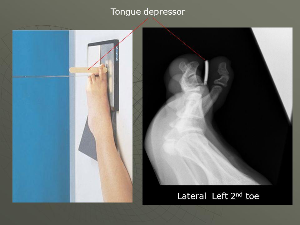 Tongue depressor Lateral Left 2 nd toe